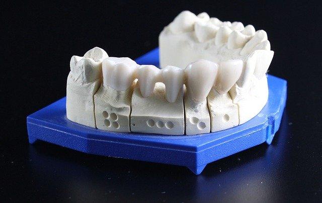 ניתוח השתלת שיניים
