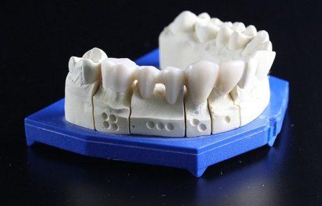 השתלות שיניים – הכנות, סיכונים ותוצאות